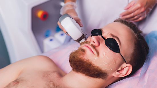 mens laser hair removal