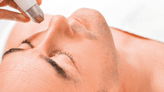 mens mesotherapy