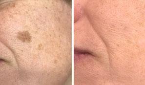 Skin Tag Removal - Male Skin Clinic Birmingham