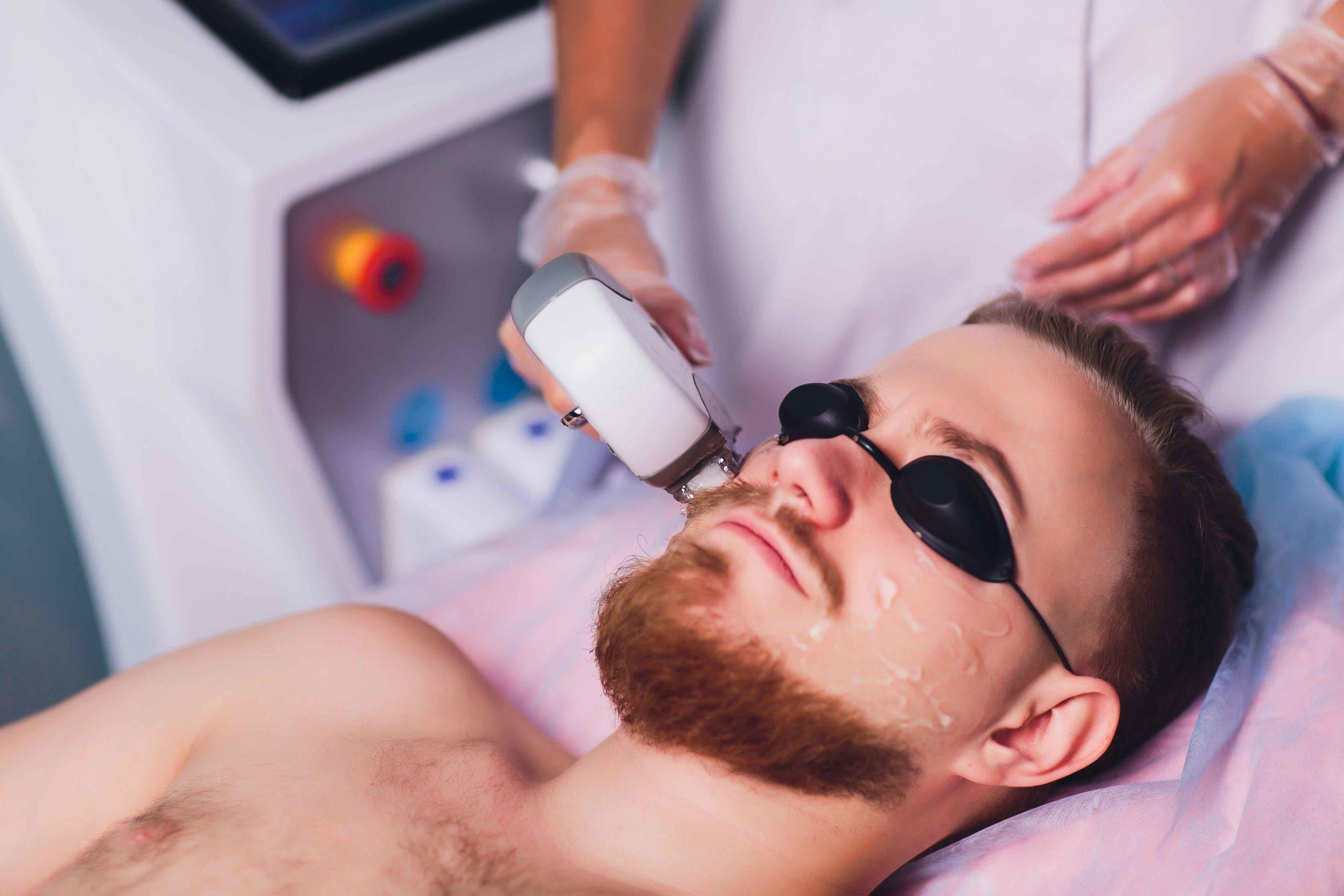 Mens Face Beard Line Laser Hair