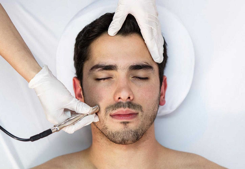 Skin Smoothing Microdermabrasion