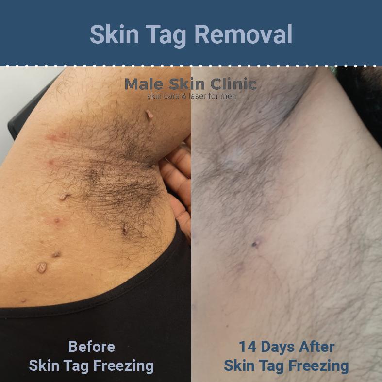 Body Skin Tag Removal